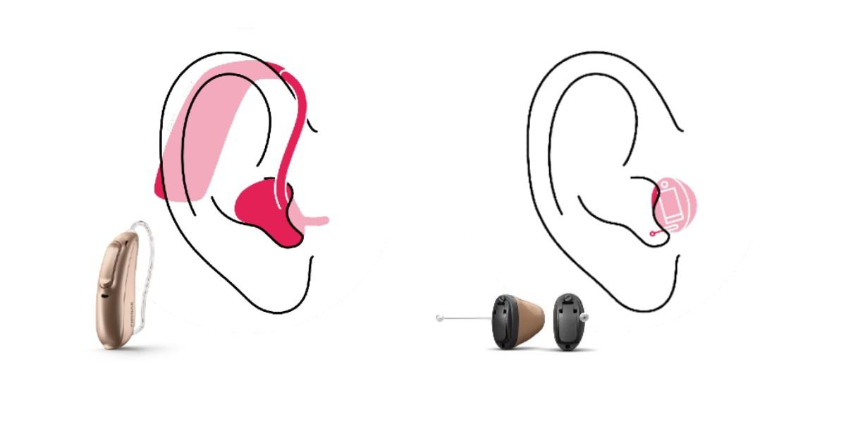 HdO oder IdO Hörgeräte